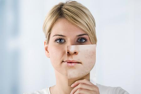 Miniserie sull'acne I - Sai perché ce l'hai?