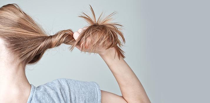 caduta dei capelli - cover