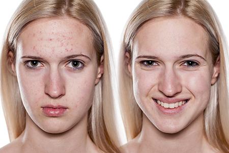 Miniserie sull'acne II - Come liberarsi dell'acne?