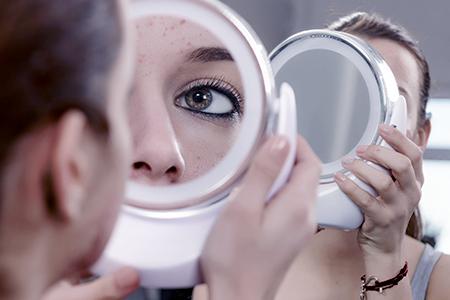 Miniserie sull'acne III: Come liberarsi delle cicatrici?